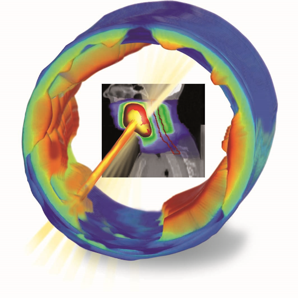 IBA Dosimetry Radiation Product Compass 3D Dose