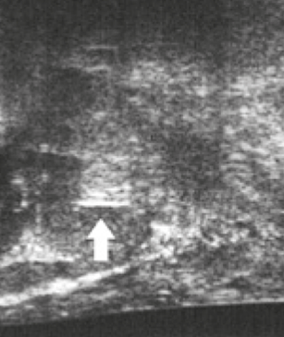 IBA Fiducial Marker Visicoil Ultrasound Prostate