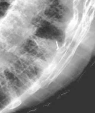 IBA Fiducial Marker Visicoil Xray Lung